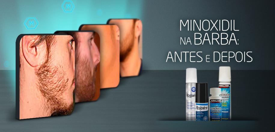 Confira o Antes e Depois do Uso do Minoxidil na Barba