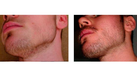 Minoxidil Antes e Depois - Barba