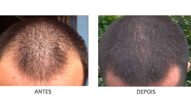 Minoxidil Antes e Depois - Cabelo