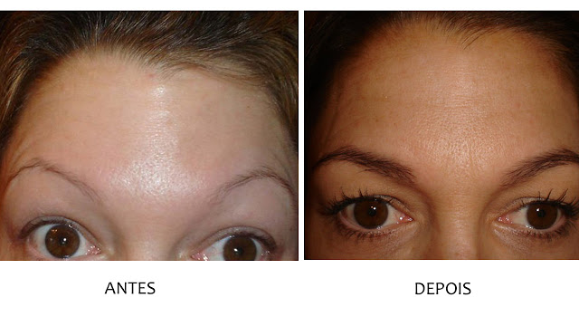 Minoxidil Antes e Depois - Sobrancelha