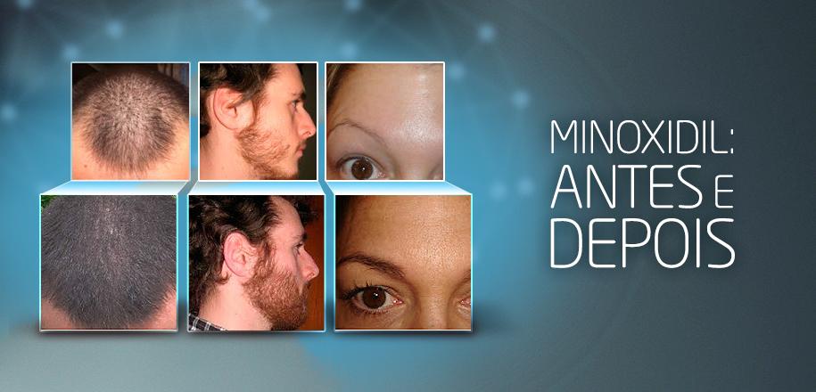 Minoxidil Antes e Depois – Cabelo, Barba e Sobrancelha